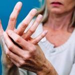 revmatoidnyj-artrit-zhenshhin-3